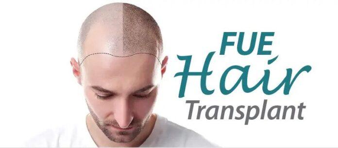 FUE hair transplant- Merits And Demerits of FUE Hair Transplant